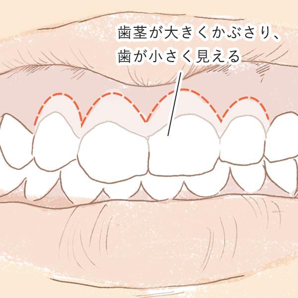 歯茎の問題