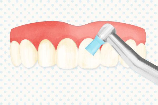 歯面の清掃(PMTC)