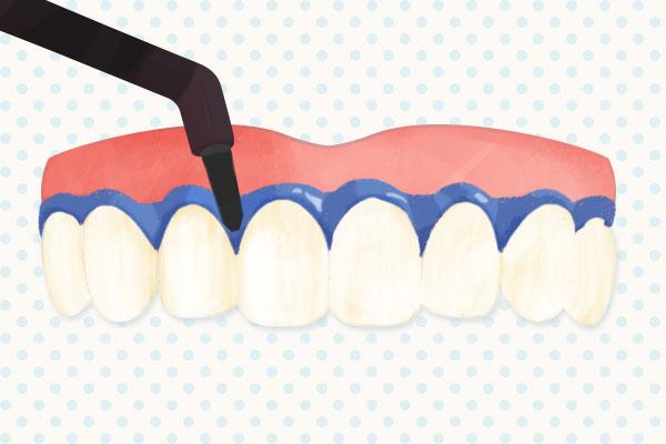 歯肉(歯茎)の保護のようす