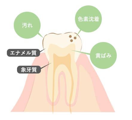 歯が黄ばむ原因